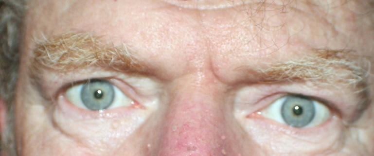 Eyes 1 a